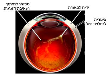 ניתוח ויטרקטומיה: נראים שלושת הפתחים המבוצעים בדופן העין והמכשירים המוחדרים דרכם לעין. הניתוח מבוצע לרוב בהרדמה מקומית ואינו כרוך בכאבים