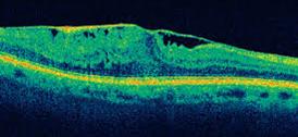 מראה oct של רשתית עם קרום אפירטינאלי