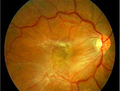 מראה רשתית מעוותת במרכזה עקב קרום אפי רטינאלי